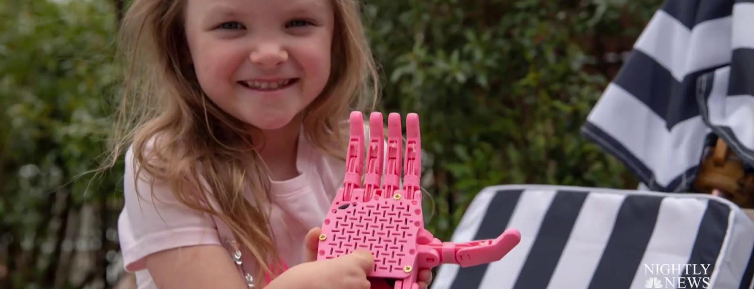 Little girl shows off pink prosthetic hand