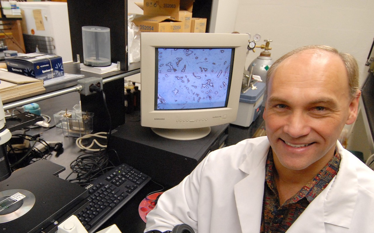 Breast Cancer researcher Georg Weber, MD,PhD, in his lab coat in his lab with microscope