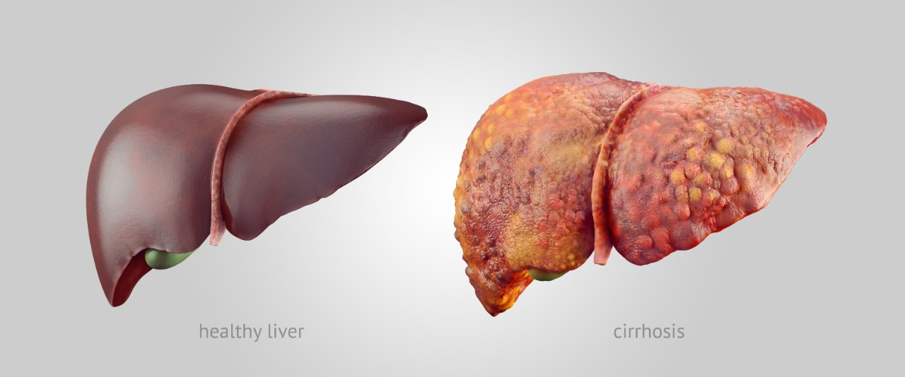Images of a healthy and diseased liver are shown.