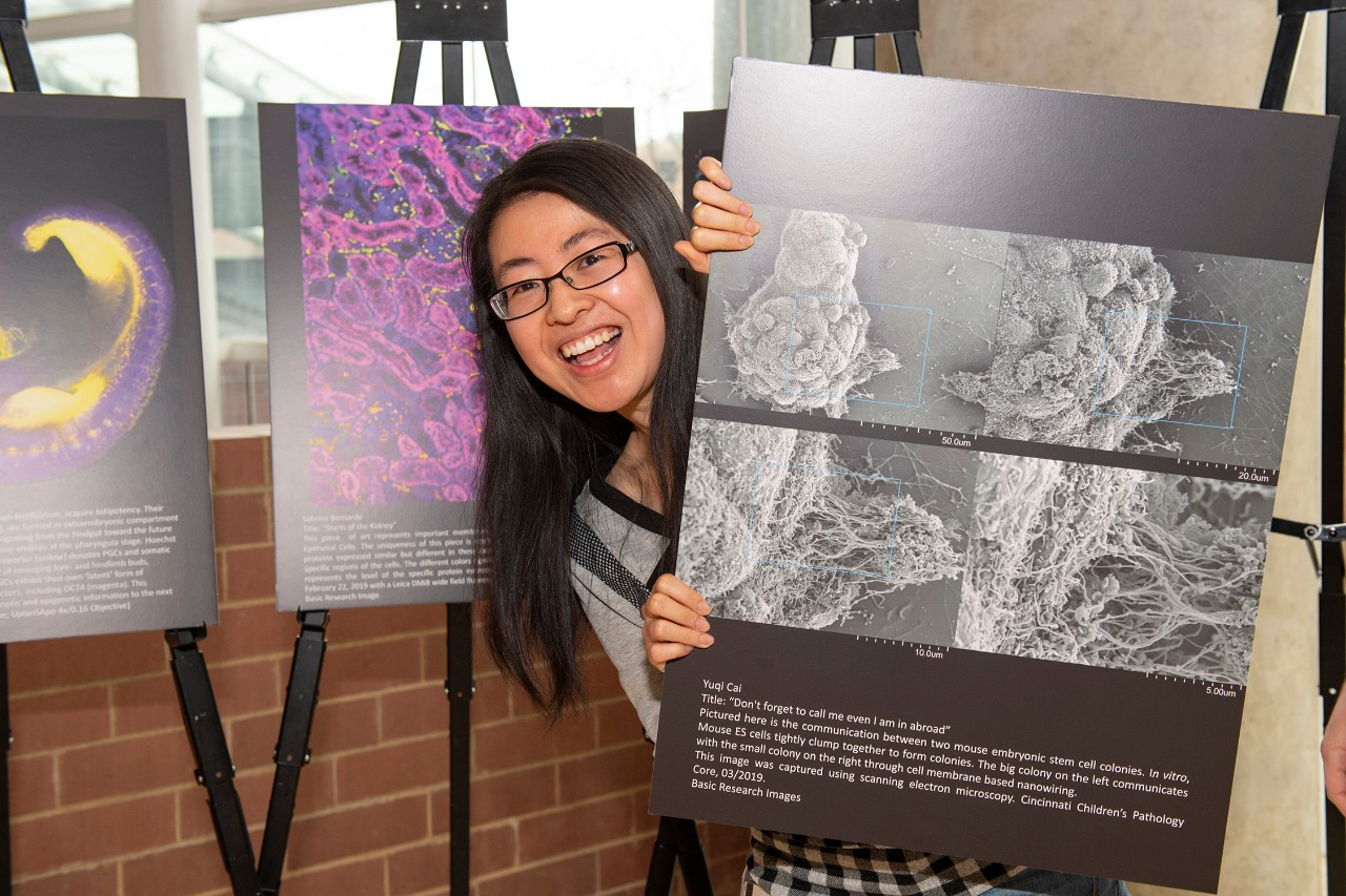 Yuqi Cai, PhD, is shown at the Internal Medicine Research Symposium image competition.