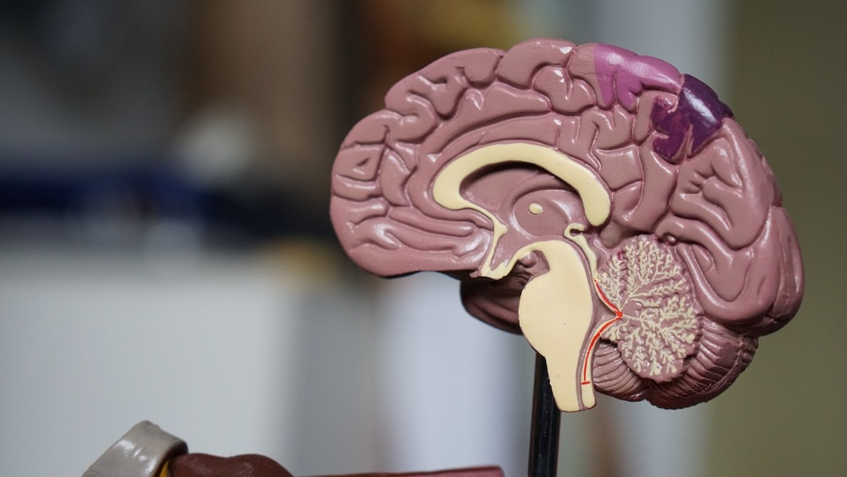 Medical model of brain