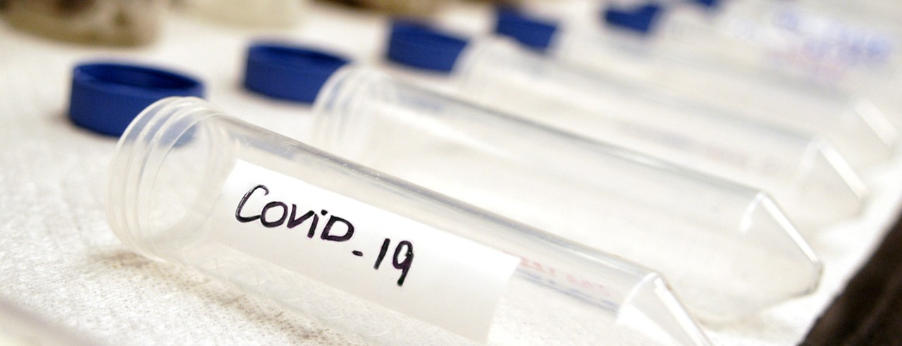 a line of test tubes on a table with blue lids off and the first tube is labeled COVID-19