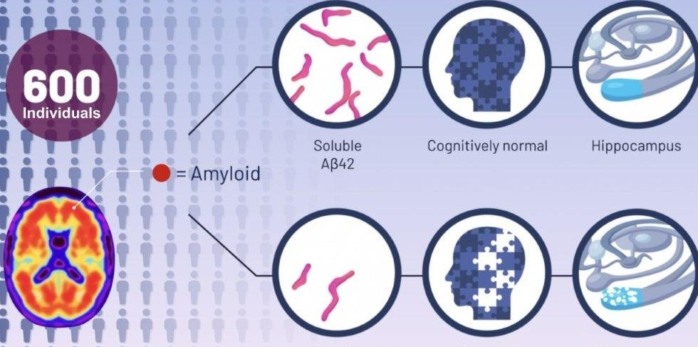 graphic of UC Alzheimer's study comparing brains with amyloids